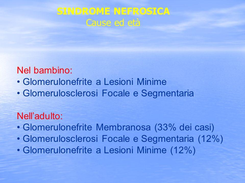 SINDROME NEFROSICA Cause ed età Nel bambino: Glomerulonefrite a Lesioni Minime Glomerulosclerosi Focale e Segmentaria Nelladulto: Glomerulonefrite Mem