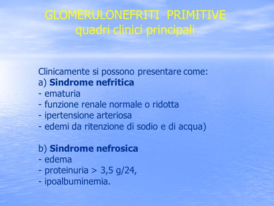 5 SINDROME NEFRITICA E caratterizzata da ematuria associata a cilindri eritrocitari, ipertensione arteriosa, oliguria ed edemi periferici.
