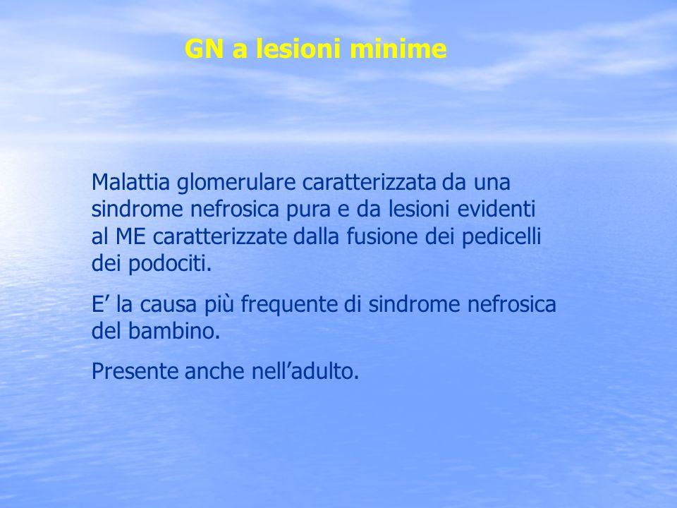 GN a lesioni minime Malattia glomerulare caratterizzata da una sindrome nefrosica pura e da lesioni evidenti al ME caratterizzate dalla fusione dei pe