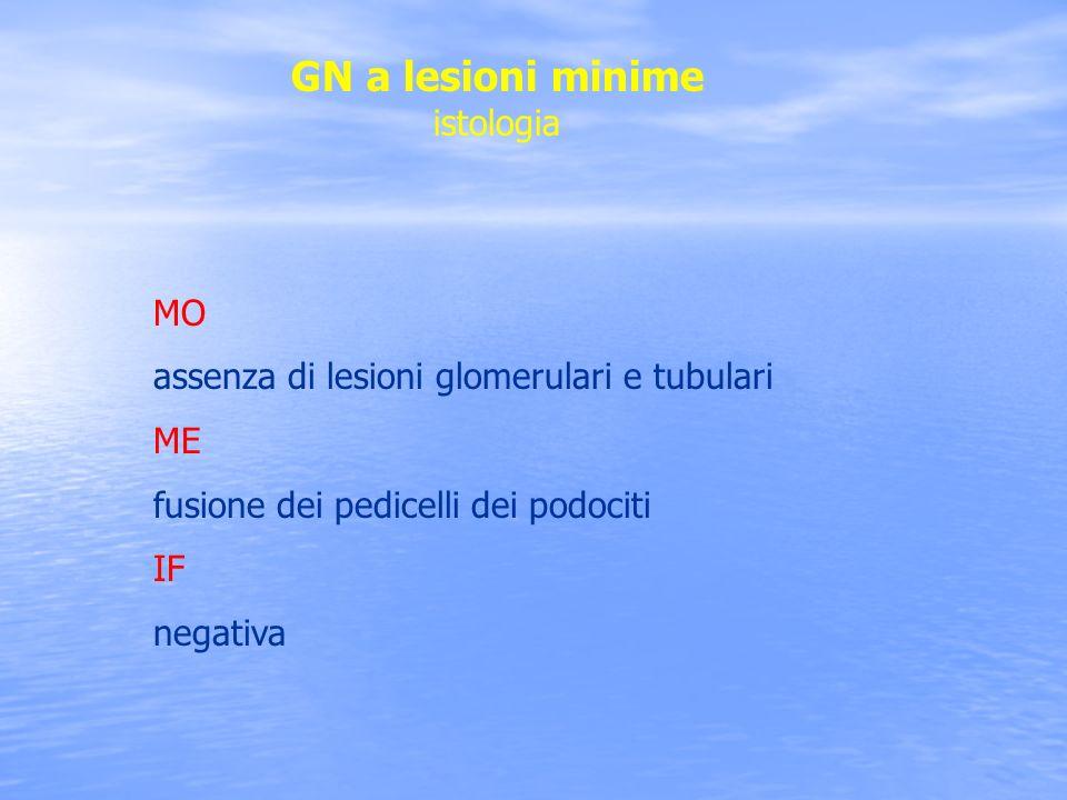 GN a lesioni minime istologia MO assenza di lesioni glomerulari e tubulari ME fusione dei pedicelli dei podociti IF negativa