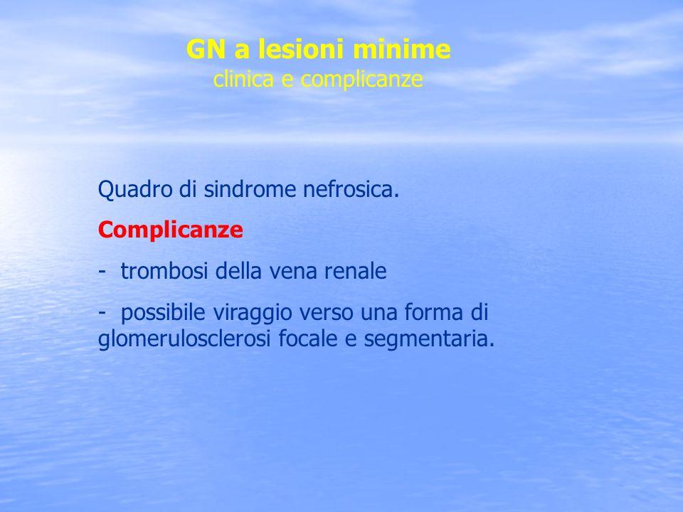 GN a lesioni minime clinica e complicanze Quadro di sindrome nefrosica. Complicanze - trombosi della vena renale - possibile viraggio verso una forma