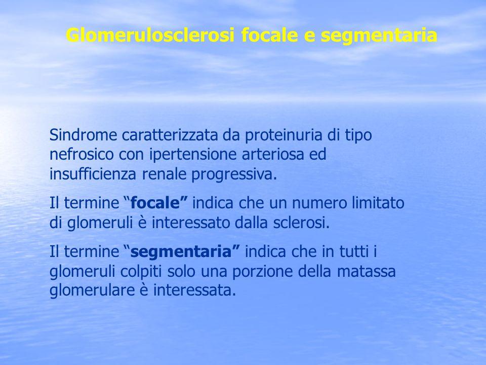 Sindrome caratterizzata da proteinuria di tipo nefrosico con ipertensione arteriosa ed insufficienza renale progressiva. Il termine focale indica che