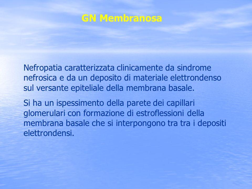 GN Membranosa Nefropatia caratterizzata clinicamente da sindrome nefrosica e da un deposito di materiale elettrondenso sul versante epiteliale della m