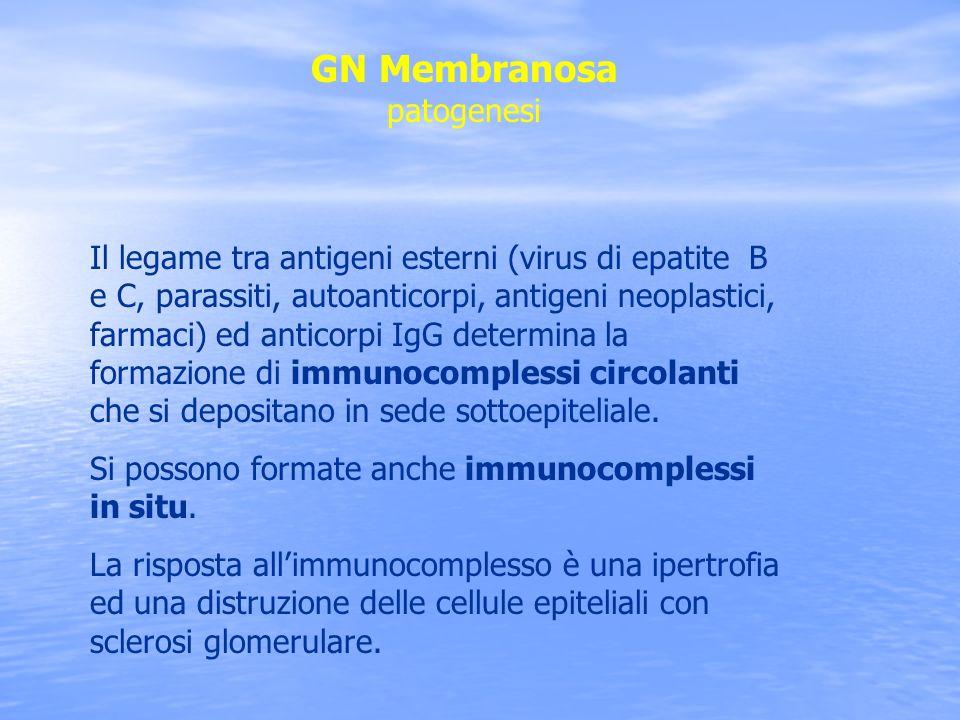 GN Membranosa patogenesi Il legame tra antigeni esterni (virus di epatite B e C, parassiti, autoanticorpi, antigeni neoplastici, farmaci) ed anticorpi