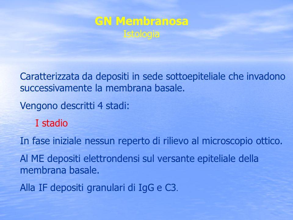 GN Membranosa Istologia Caratterizzata da depositi in sede sottoepiteliale che invadono successivamente la membrana basale. Vengono descritti 4 stadi: