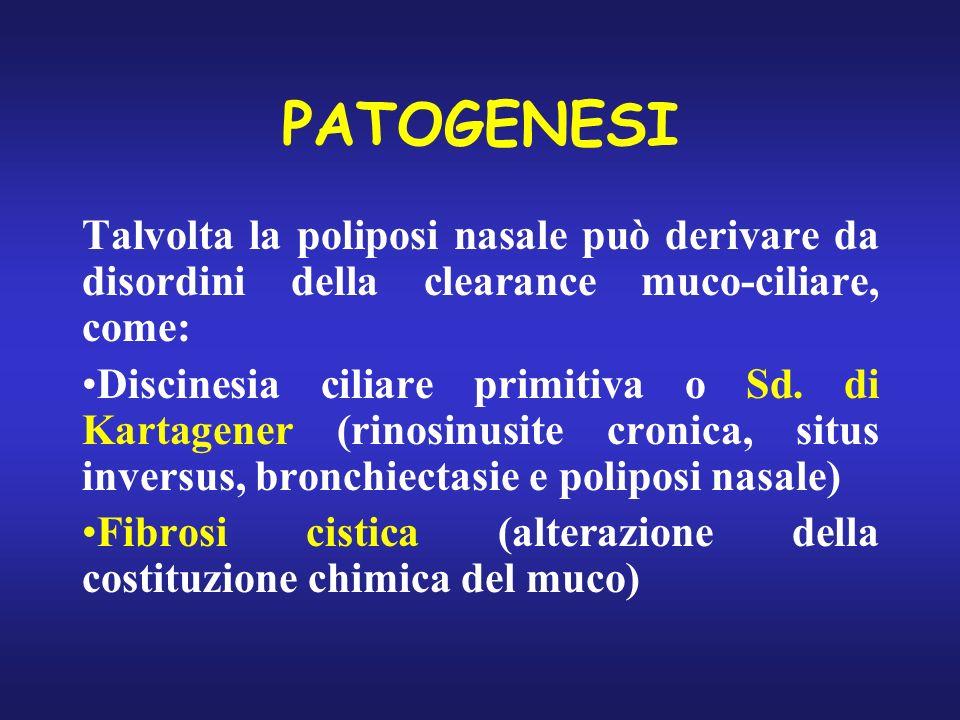 PATOGENESI Talvolta la poliposi nasale può derivare da disordini della clearance muco-ciliare, come: Discinesia ciliare primitiva o Sd. di Kartagener