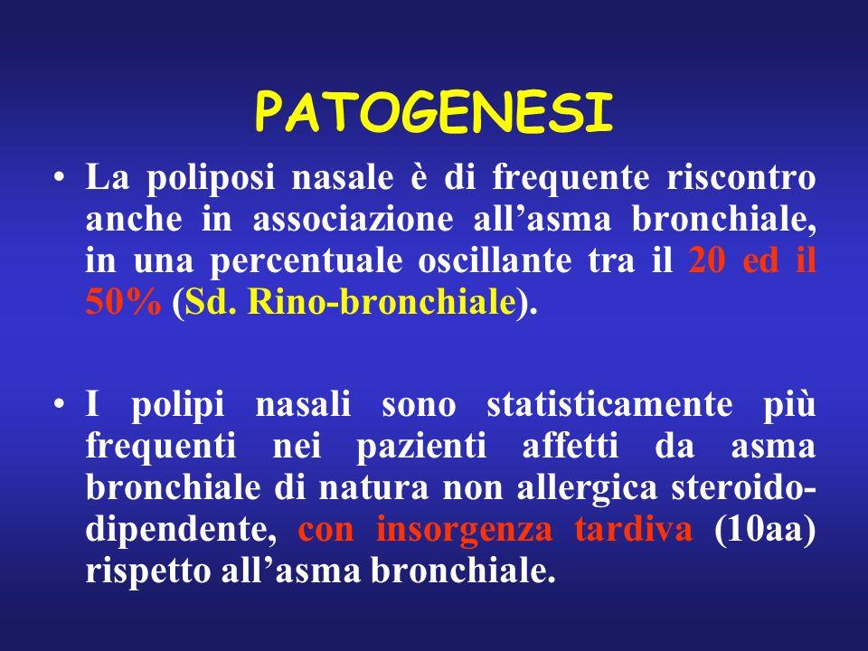 PATOGENESI La poliposi nasale è di frequente riscontro anche in associazione allasma bronchiale, in una percentuale oscillante tra il 20 ed il 50% (Sd