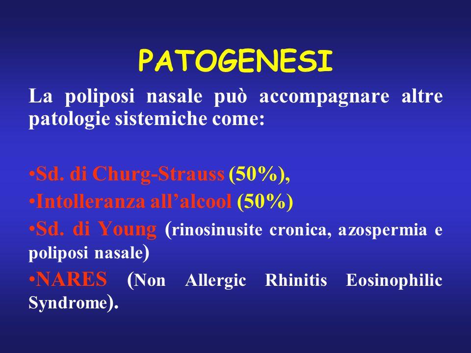 PATOGENESI La poliposi nasale può accompagnare altre patologie sistemiche come: Sd. di Churg-Strauss (50%), Intolleranza allalcool (50%) Sd. di Young