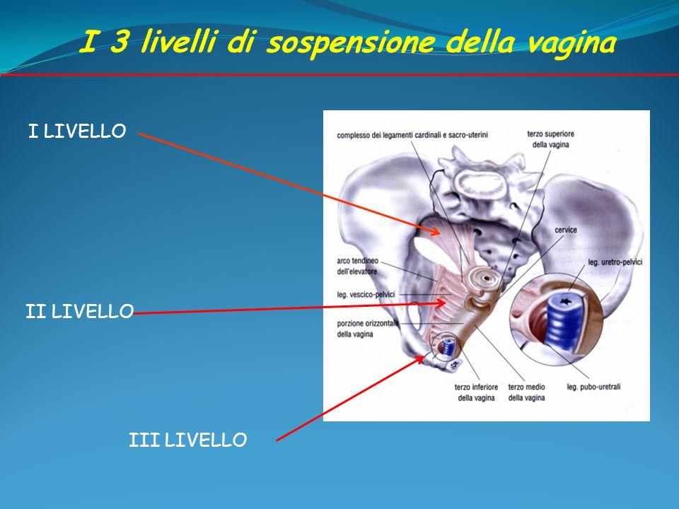 I LIVELLO II LIVELLO III LIVELLO I 3 livelli di sospensione della vagina