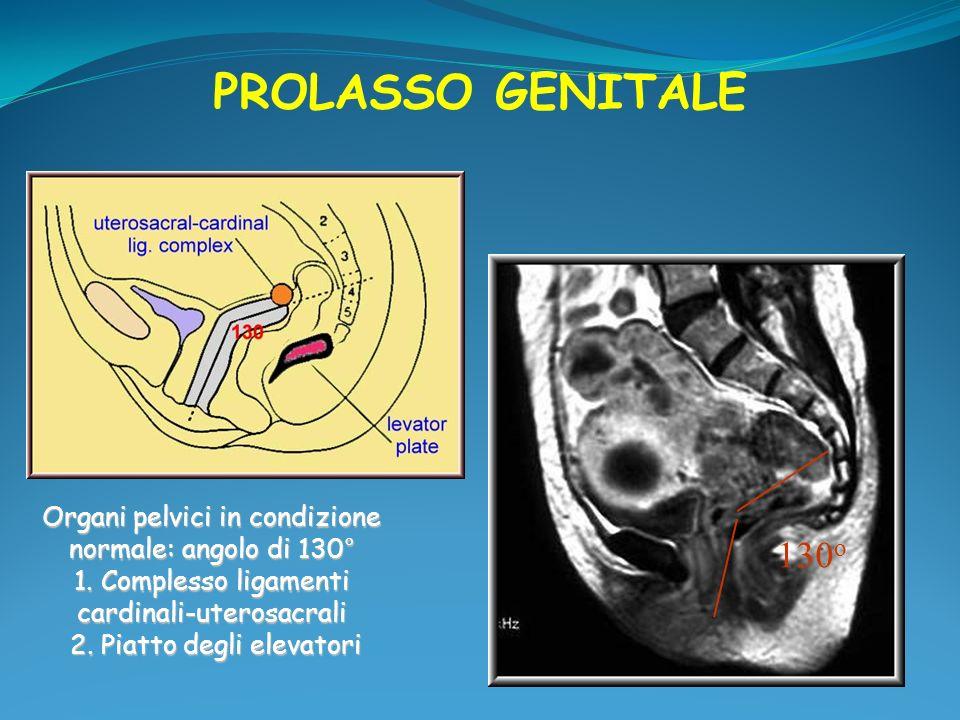 Legamenti pubo-uretrali Stabilizzano la positione delluretra soprattutto sotto sforzo n Tessuto connettivo56% n Muscolatura liscia30% n Vasi sanguigni11% n Mucolatura striata2% n Nervi1% - Decorrono per tutta la lunghezza dell uretra - Nelle donne in post-menopausa riduzione del tessuto connettivo e dei vasi sanguigni Verelst M et al 2002