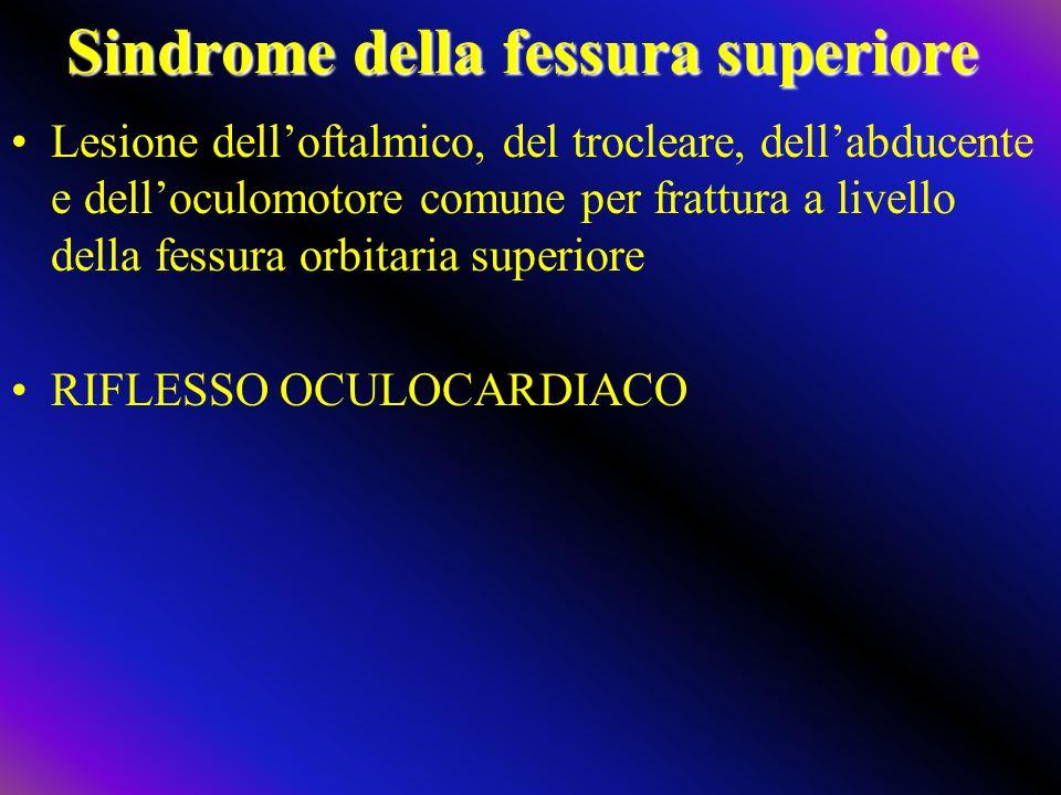 Sindrome della fessura superiore Lesione delloftalmico, del trocleare, dellabducente e delloculomotore comune per frattura a livello della fessura orb