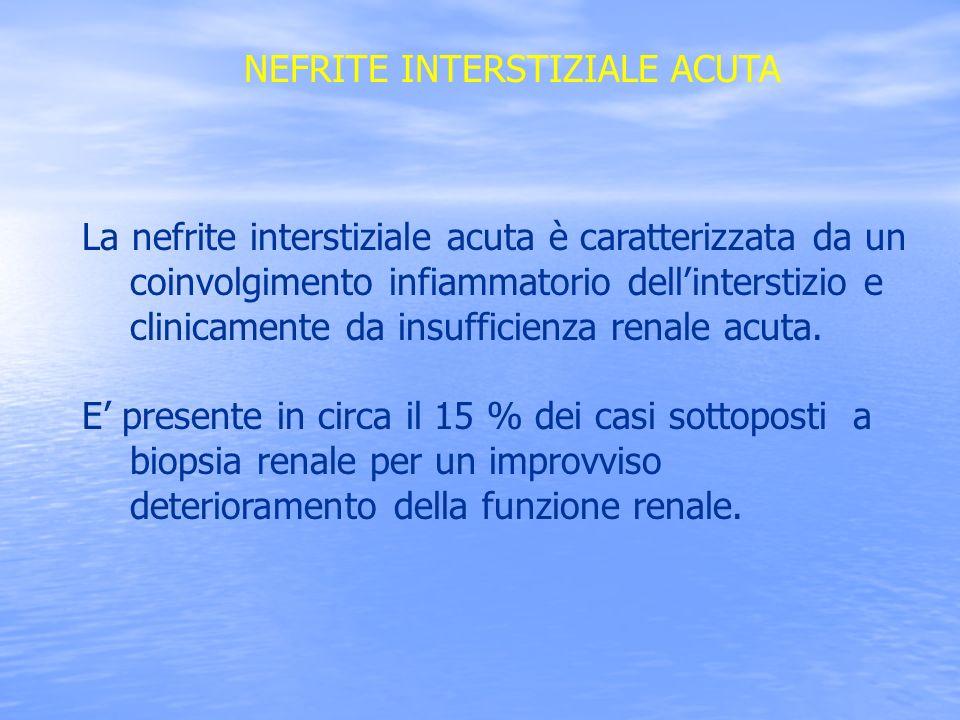 NEFRITE INTERSTIZIALE ACUTA La nefrite interstiziale acuta è caratterizzata da un coinvolgimento infiammatorio dellinterstizio e clinicamente da insuf