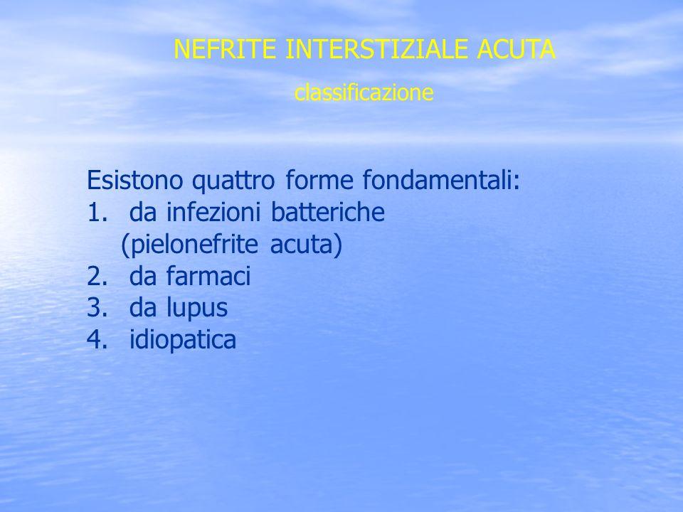 NEFRITE INTERSTIZIALE ACUTA Pielonefrite acuta Si tratta di un infezione localizzata nel rene, spesso monolaterale, caratterizzata da: Urinocoltura positiva Sintomi generali ( malessere generale, brividi, febbre, cefalea, nausea e vomito ) Sintomi locali ( dolori lombari, disuria, stranguria, tenesmo, pollachiuria, ematuria macroscopica) Dolorabilità in sede paravertebrale In presenza di batteriemia brivido e febbre elevata