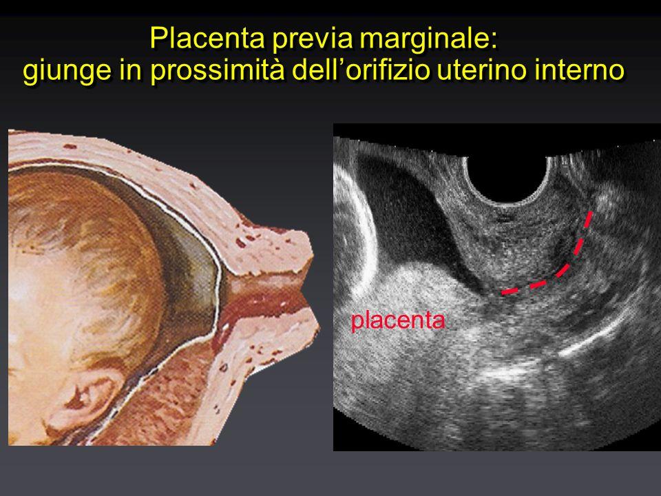 Placenta previa marginale: giunge in prossimità dellorifizio uterino interno placenta
