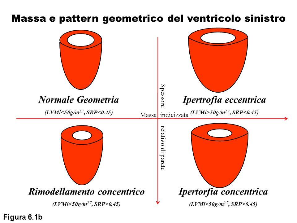 Normale Geometria (LVMi<50g/m 2.7, SRP<0.45) Ipertrofia eccentrica (LVMi>50g/m 2.7, SRP<0.45) Rimodellamento concentrico (LVMi 0.45) Ipertorfia concen