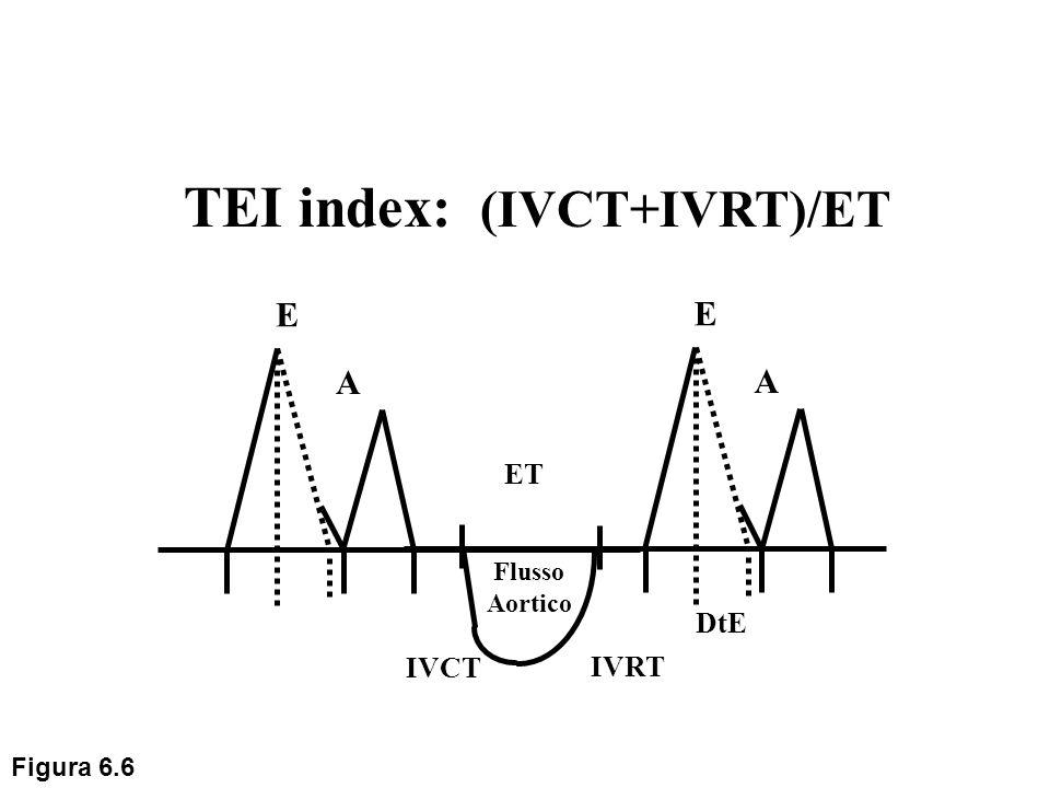 E A Flusso Aortico IVRT DtE TEI index: (IVCT+IVRT)/ET E A IVCT ET Figura 6.6
