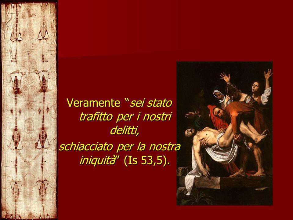 Veramente sei stato trafitto per i nostri delitti, schiacciato per la nostra iniquità (Is 53,5).