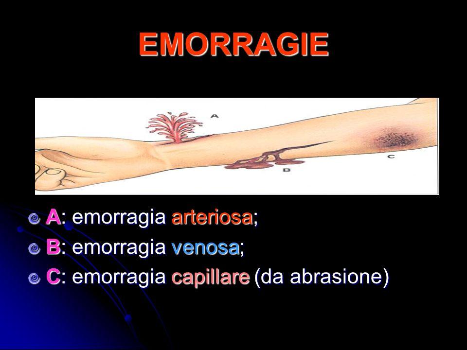 EMORRAGIE A: emorragia arteriosa; B: emorragia venosa; C: emorragia capillare (da abrasione)