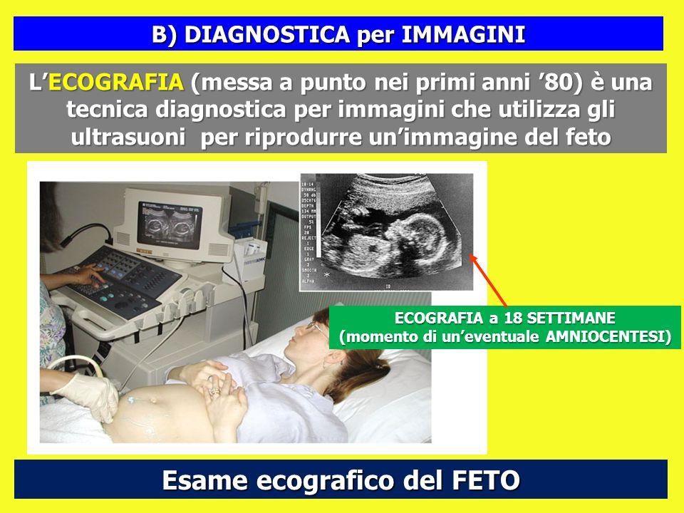 Esame ecografico del FETO LECOGRAFIA (messa a punto nei primi anni 80) è una tecnica diagnostica per immagini che utilizza gli ultrasuoni per riprodur