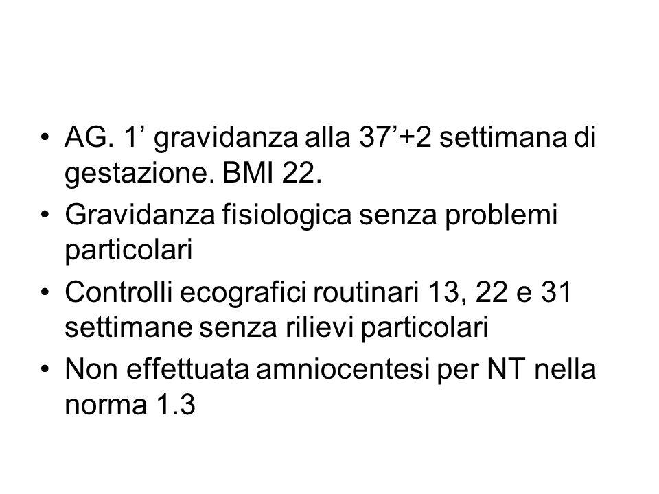 AG. 1 gravidanza alla 37+2 settimana di gestazione. BMI 22. Gravidanza fisiologica senza problemi particolari Controlli ecografici routinari 13, 22 e