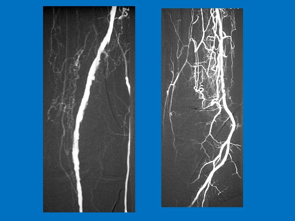 Follow-up TASC II* 25% decessi per CHD fatale 30% amputazioni maggiori 45% vivi senza amputazioni Follow-up Tor Vergata 10.8 % decessi totali (7.9% CHD fatale) 12.9 % amputazioni maggiori 76.3 % vivi senza amputazioni maggiori Esito dei pazienti con ischemia critica *Fonte: TASCII, Gennaio 2007, Journal of Vascular Surgery – Hirsch AT et al.