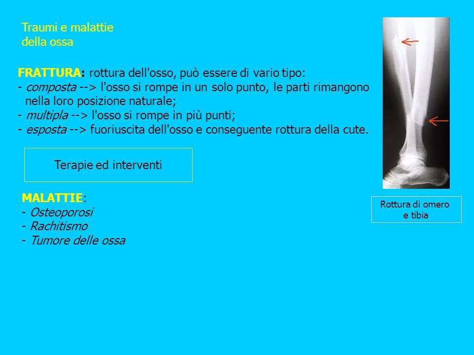 Traumi e malattie della ossa FRATTURA: rottura dell'osso, può essere di vario tipo: - composta --> l'osso si rompe in un solo punto, le parti rimangon