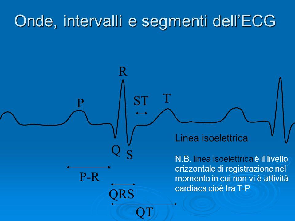 Morfologia fondamentale dellECG Londa elettrocardiografica si compone inoltre di: Intervallo PR dallinizio onda P allinizio QRS Intervallo PR dalliniz