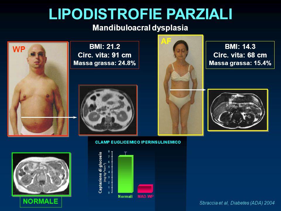 Mandibuloacral dysplasia LIPODISTROFIE PARZIALI Sbraccia et al, Diabetes (ADA) 2004 WP NORMALE BMI: 21.2 Circ. vita: 91 cm Massa grassa: 24.8% AF BMI: