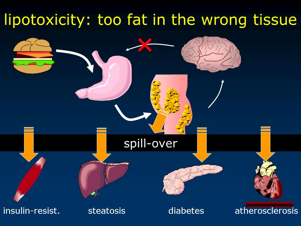 lipotoxicity: too fat in the wrong tissue atherosclerosisinsulin-resist.steatosisdiabetes spill-over