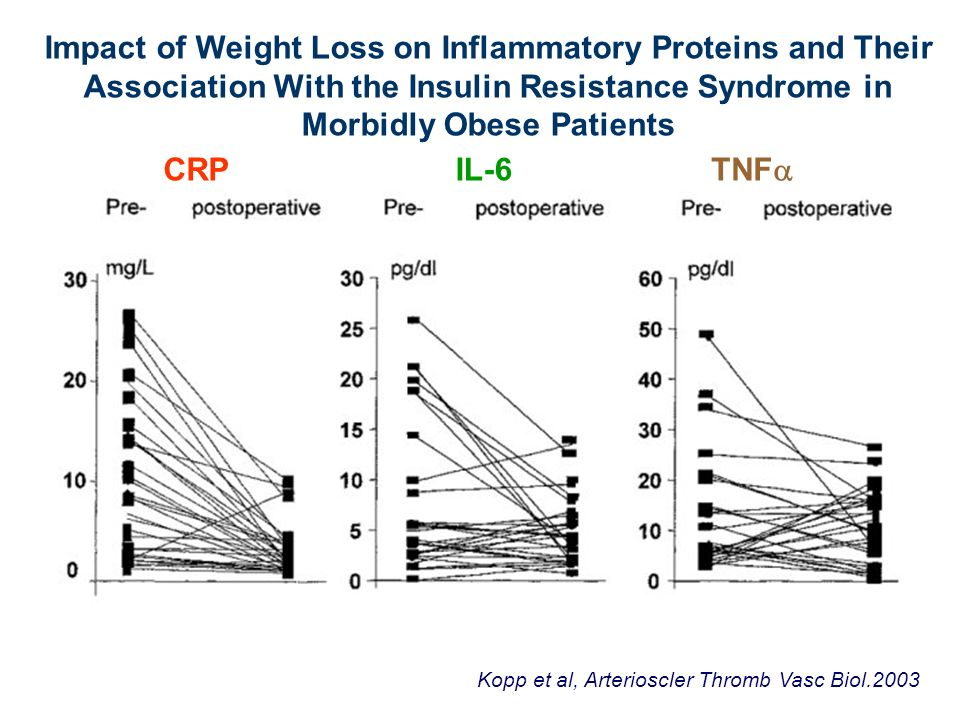 Impact of Weight Loss on Inflammatory Proteins and Their Association With the Insulin Resistance Syndrome in Morbidly Obese Patients Kopp et al, Arterioscler Thromb Vasc Biol.2003 CRPIL-6 TNF