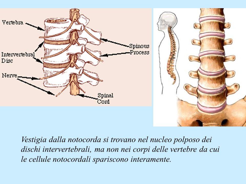 Vestigia dalla notocorda si trovano nel nucleo polposo dei dischi intervertebrali, ma non nei corpi delle vertebre da cui le cellule notocordali spari