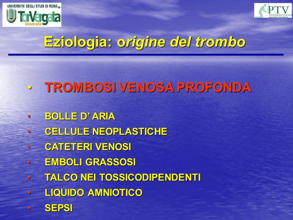 Eziologia: origine del trombo TROMBOSI VENOSA PROFONDATROMBOSI VENOSA PROFONDA BOLLE D ARIABOLLE D ARIA CELLULE NEOPLASTICHECELLULE NEOPLASTICHE CATET