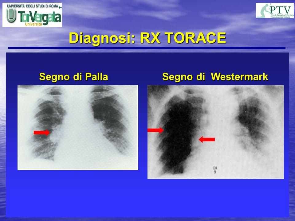 Diagnosi: RX TORACE Negativa nel 12% dei casi Negativa nel 12% dei casi Amputazione dei rami polmonari principali Amputazione dei rami polmonari princ