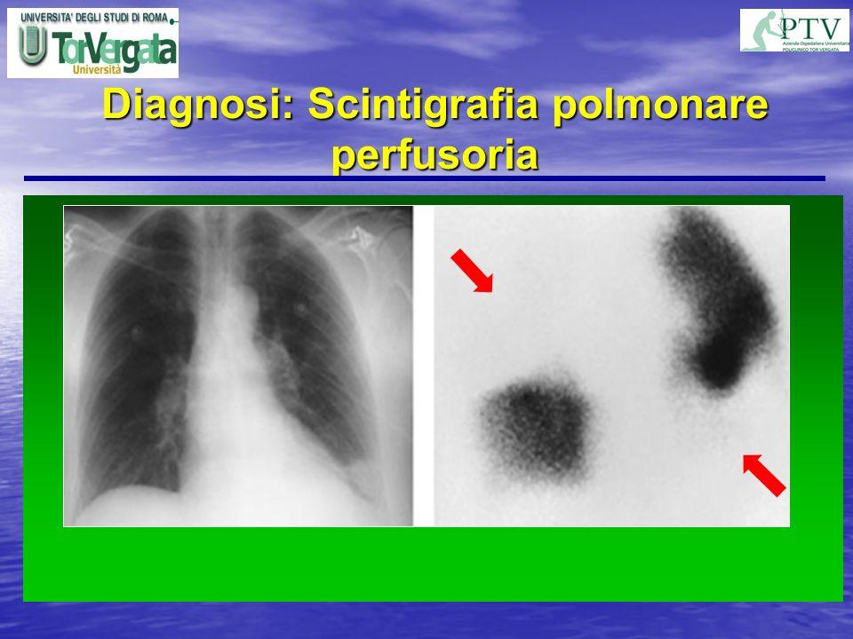 Diagnosi: Scintigrafia polmonare perfusoria quadri scintigrafici per embolia polmonare: probabilità alta probabilità alta probabilità intermedia proba