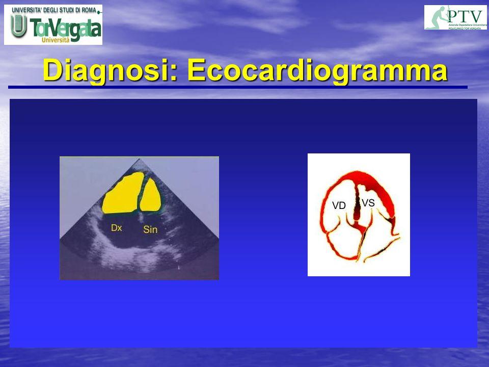 Diagnosi: Ecocardiogramma