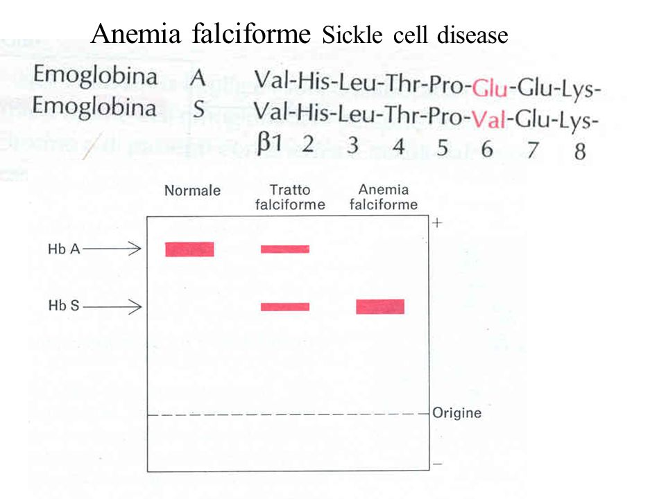 Anemia falciforme Sickle cell disease