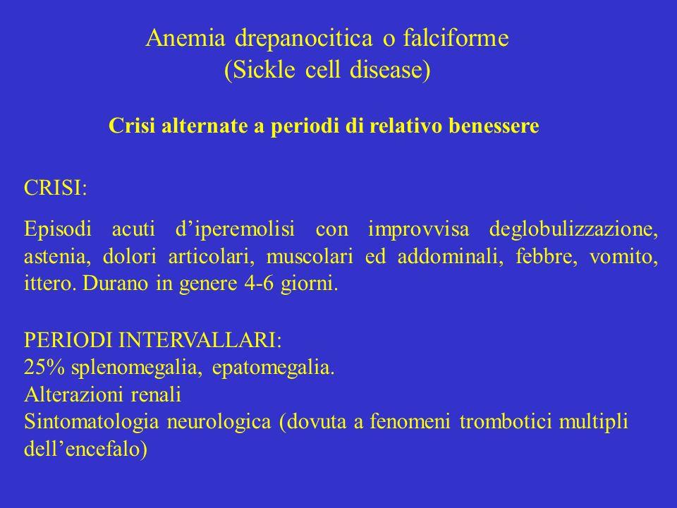 Anemia drepanocitica o falciforme (Sickle cell disease) Crisi alternate a periodi di relativo benessere CRISI: Episodi acuti diperemolisi con improvvi