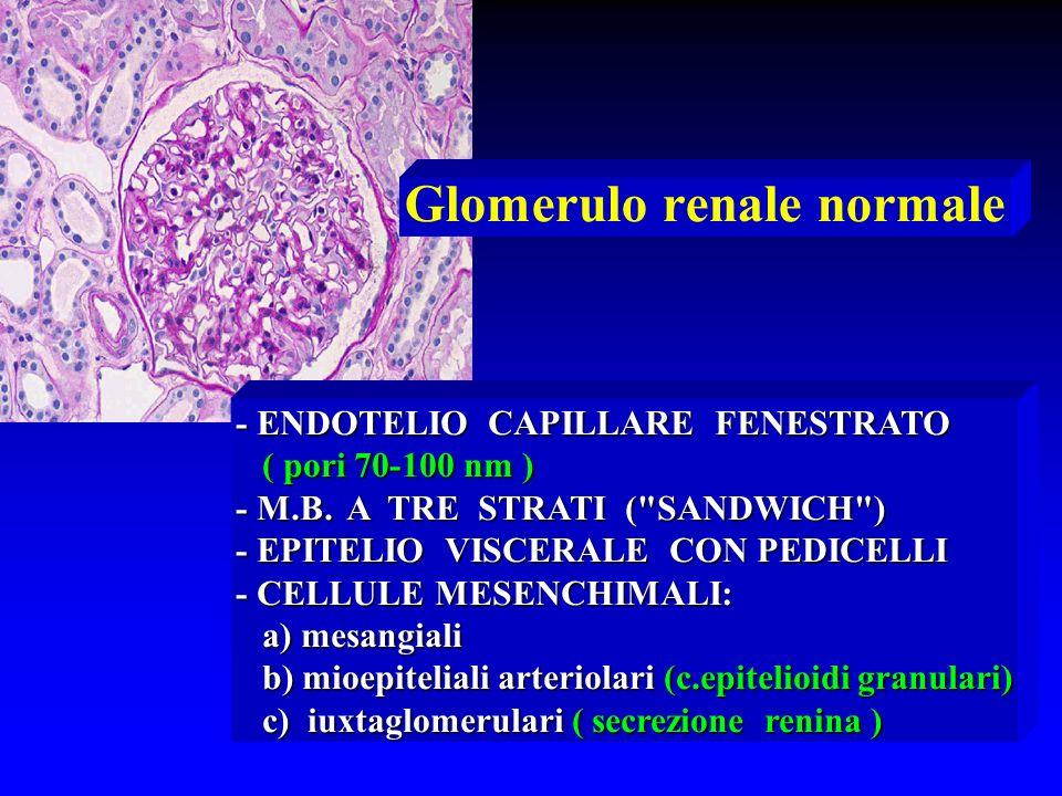 Glomerulo renale normale - ENDOTELIO CAPILLARE FENESTRATO ( pori 70-100 nm ) ( pori 70-100 nm ) - M.B. A TRE STRATI (