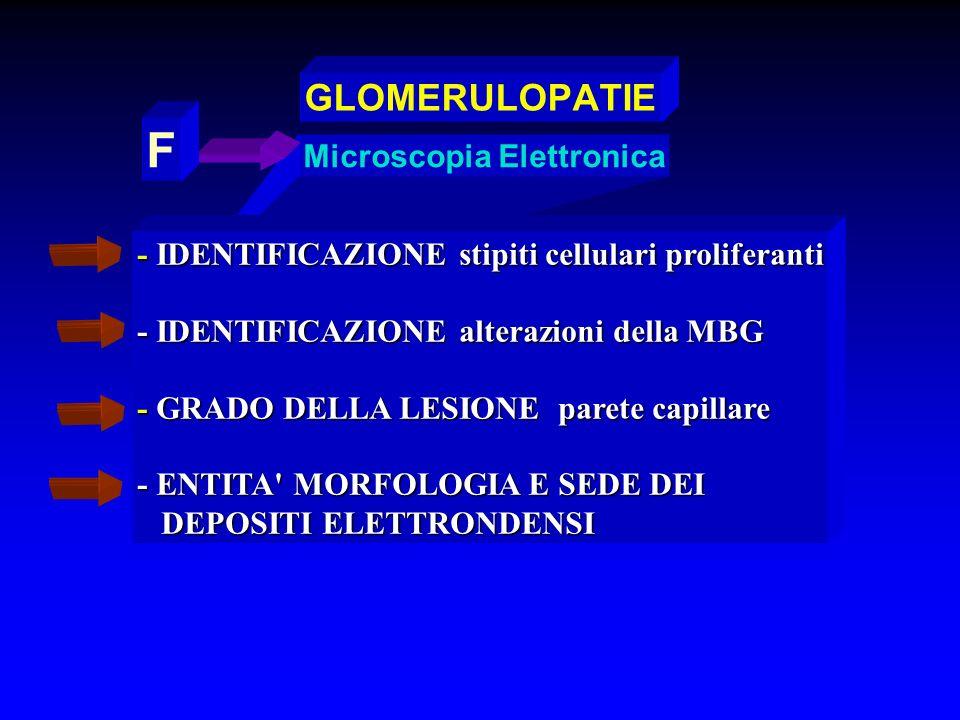 Microscopia Elettronica F - IDENTIFICAZIONE stipiti cellulari proliferanti - IDENTIFICAZIONE alterazioni della MBG - GRADO DELLA LESIONE parete capill