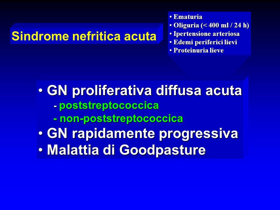 Sindrome nefritica acuta Ematuria Ematuria Oliguria (< 400 ml / 24 h) Oliguria (< 400 ml / 24 h) Ipertensione arteriosa Ipertensione arteriosa Edemi p