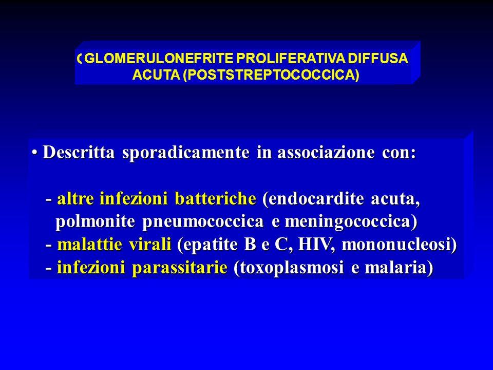 GLOMERULONEFRITE PROLIFERATIVA ACUTA DIFFUSA (NON-STREPTOCOCCICA) Descritta sporadicamente in associazione con: Descritta sporadicamente in associazio
