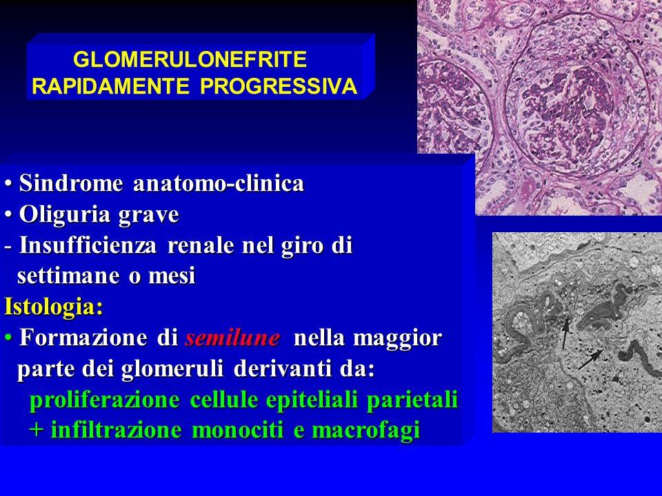 GLOMERULONEFRITE RAPIDAMENTE PROGRESSIVA Sindrome anatomo-clinica Sindrome anatomo-clinica Oliguria grave Oliguria grave - Insufficienza renale nel gi