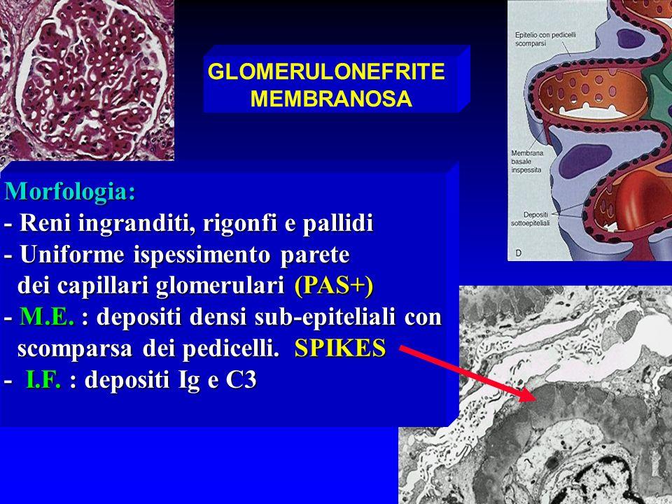 GLOMERULONEFRITE MEMBRANOSA Morfologia: - Reni ingranditi, rigonfi e pallidi - Uniforme ispessimento parete dei capillari glomerulari (PAS+) dei capil