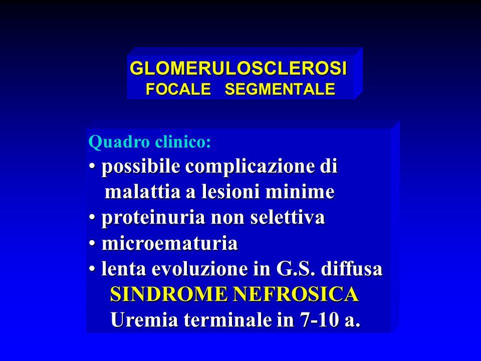 GLOMERULOSCLEROSI FOCALE SEGMENTALE Quadro clinico: possibile complicazione di possibile complicazione di malattia a lesioni minime malattia a lesioni