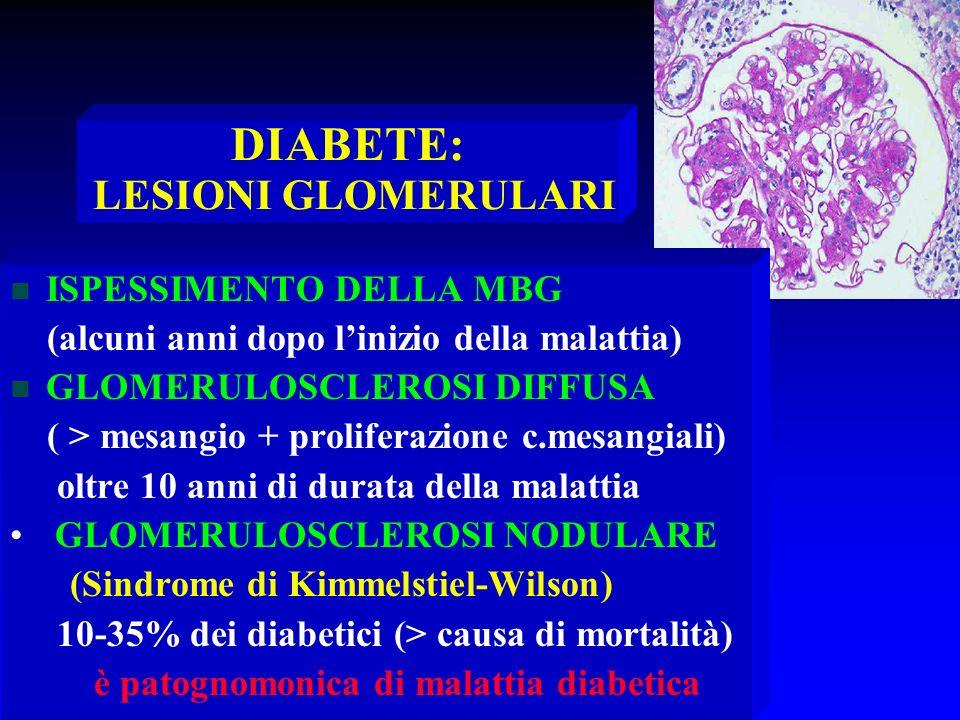 DIABETE: LESIONI GLOMERULARI n ISPESSIMENTO DELLA MBG (alcuni anni dopo linizio della malattia) n GLOMERULOSCLEROSI DIFFUSA ( > mesangio + proliferazi