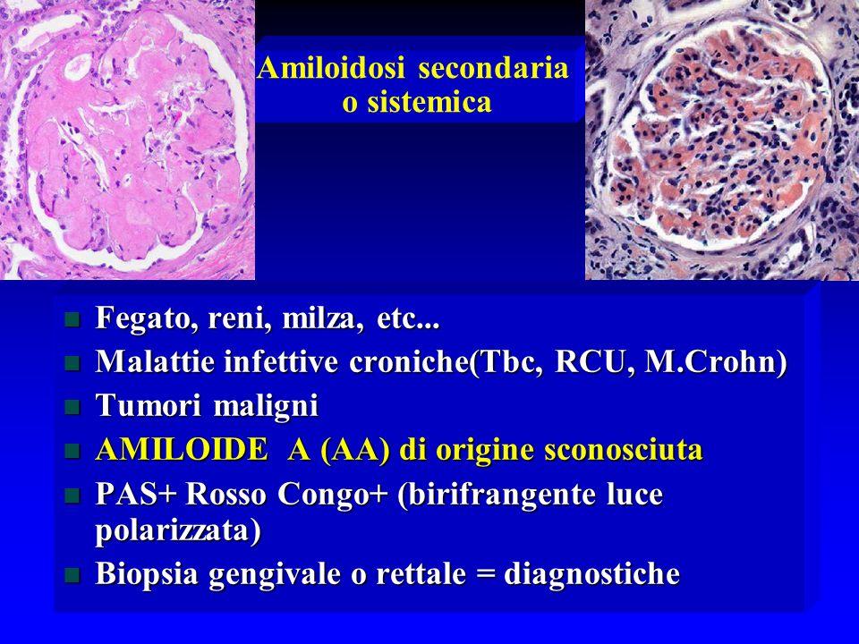 Amiloidosi secondaria o sistemica n Fegato, reni, milza, etc... n Malattie infettive croniche(Tbc, RCU, M.Crohn) n Tumori maligni n AMILOIDE A (AA) di