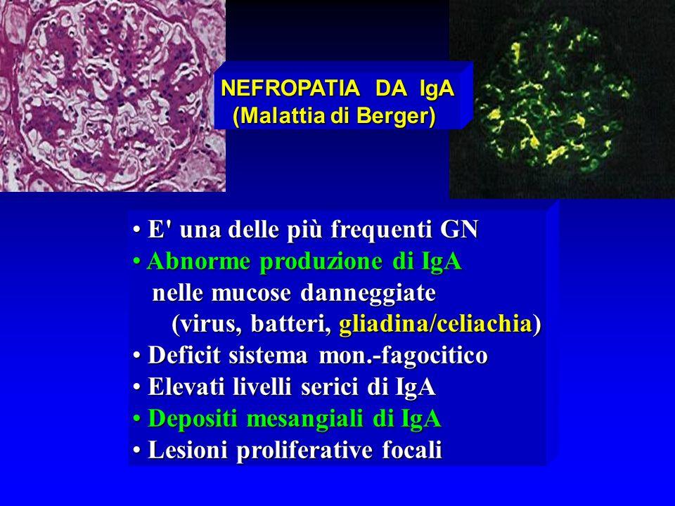 E' una delle più frequenti GN E' una delle più frequenti GN Abnorme produzione di IgA Abnorme produzione di IgA nelle mucose danneggiate nelle mucose