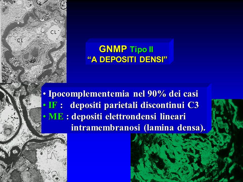 GNMP Tipo II A DEPOSITI DENSI Ipocomplementemia nel 90% dei casi Ipocomplementemia nel 90% dei casi IF : depositi parietali discontinui C3 IF : deposi