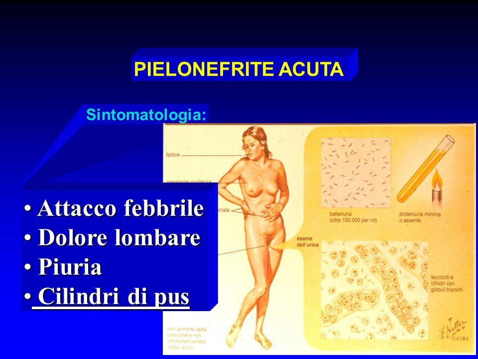 PIELONEFRITE ACUTA Sintomatologia: Attacco febbrile Attacco febbrile Dolore lombare Dolore lombare Piuria Piuria Cilindri di pus Cilindri di pus