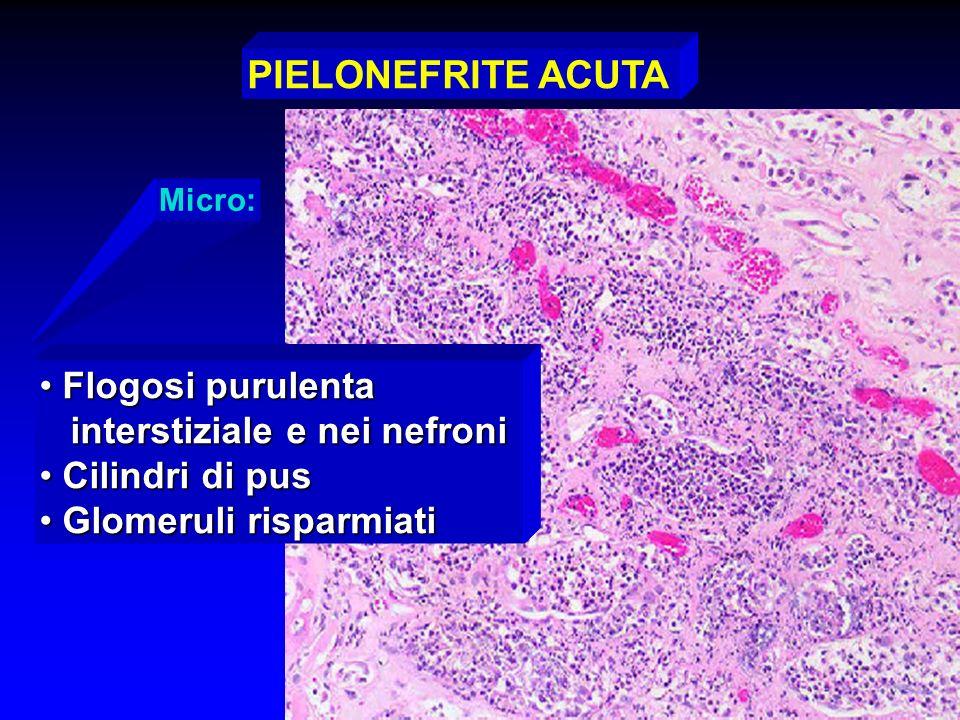 Micro: PIELONEFRITE ACUTA Flogosi purulenta Flogosi purulenta interstiziale e nei nefroni interstiziale e nei nefroni Cilindri di pus Cilindri di pus
